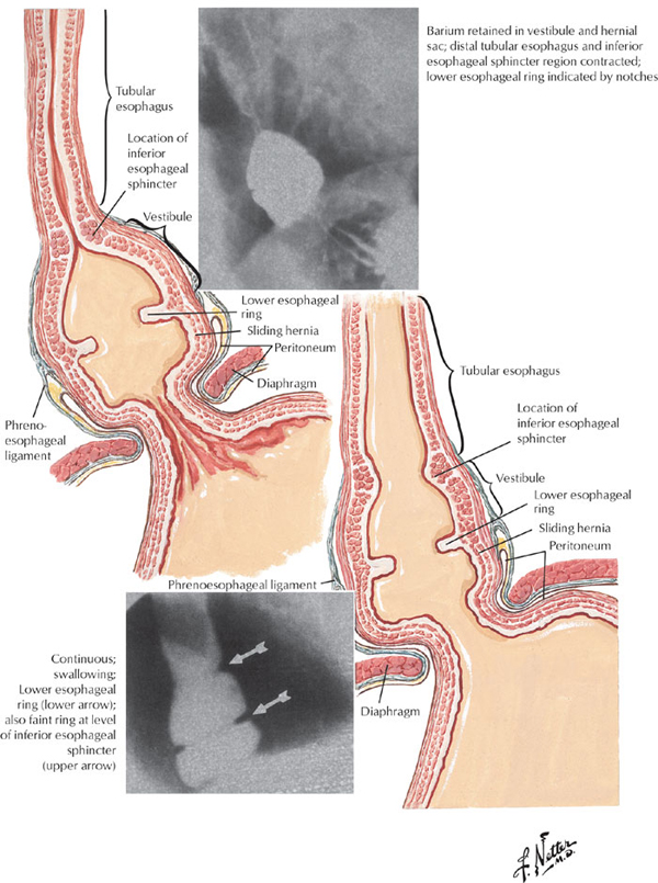 Severe Stomach Acid And Throat Pain