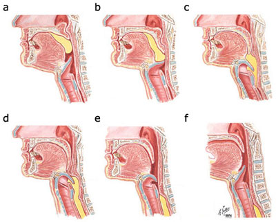 Figure 2 | Oral, pharyngeal and esophageal motor function in aging ...