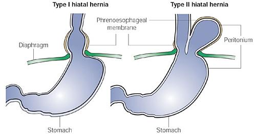 paraesophgeal hiatus hernia