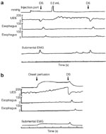 Figure 11 : Effect of pharyngeal water injection on UES resting pressure. Unfortunately we are unable to provide accessible alternative text for this. If you require assistance to access this image, or to obtain a text description, please contact npg@nature.com
