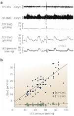Figure 7 : Relationship of CP and TP|[emsp]|EMG activities to UES pressure during rest and excitation. Unfortunately we are unable to provide accessible alternative text for this. If you require assistance to access this image, or to obtain a text description, please contact npg@nature.com