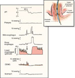 Figure 6 : Physiologic record of a spontaneous, transient relaxation of the LES. Unfortunately we are unable to provide accessible alternative text for this. If you require assistance to access this image, or to obtain a text description, please contact npg@nature.com