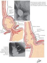 pathophysiology of gastroesophageal reflux disease : gi motility, Cephalic Vein