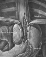Surgical treatment for achalasia : GI Motility online