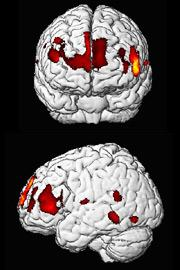 Grey matter in key areas of the brain seems to be linked to intelligence.