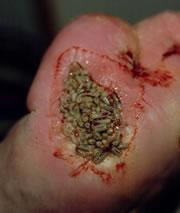 Pictures of Bad Wounds http://www.nature.com/news/2007/070430/full/070430-13.html