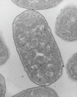 Electron microscopy suggests that Echerichia coli and other bacteria have no organized internal structure.