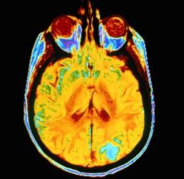 brain cancer MRI