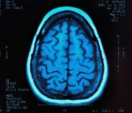 news.2010.mri scan Study finds that brain scans can predict criminal behavior