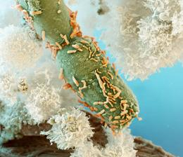 Coloured scanning electron micrograph (SEM) of a group of Rhodobacter sp. phototrophic bacteria (orange