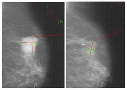breast cancer tumour