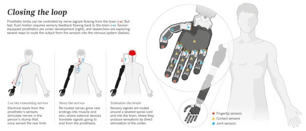 Neuroprosthetics Once More With Feeling Nature News