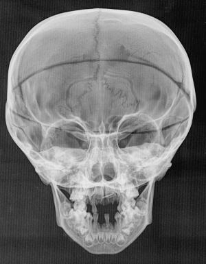 @ Nature/1.Giuffra, V. et al. Int. J. Osteoarchaeol. http://dx.doi.org/10.1002/oa.2324 (2013)
