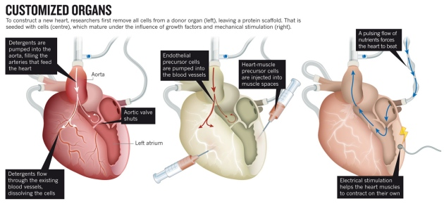 Understanding the Complex Process of Heart Transplant