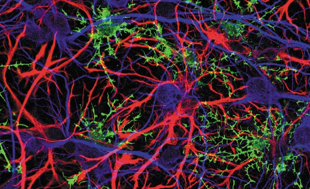 Glia_and_neurons.jpg