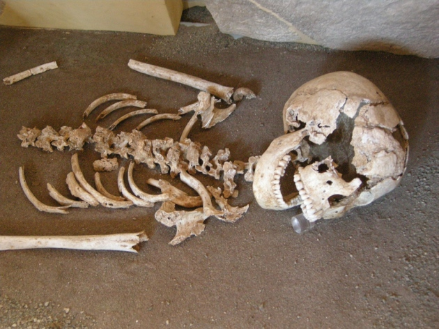 """modern disease found in ancient bones Bones found in a cave in morocco add 100,000 years to the history of modern human fossils these bones are from """"early anatomically modern"""" humans — our own species, homo sapiens, with a."""