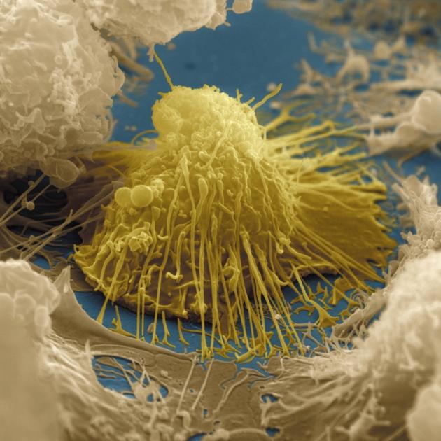 주사전자현미경으로 관찰한 B세포의 모습