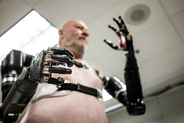 prosthetic limbs research paper