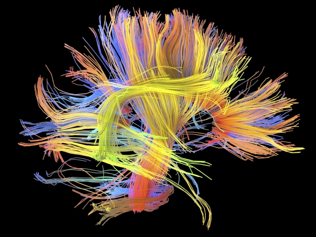 wiring diagrams link lifestyle to brain function nature news alfred pasieka science photo library