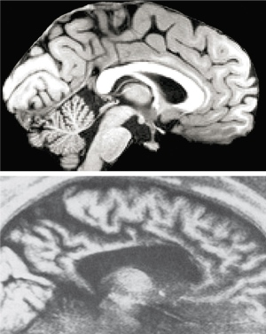 Split-brain experiments