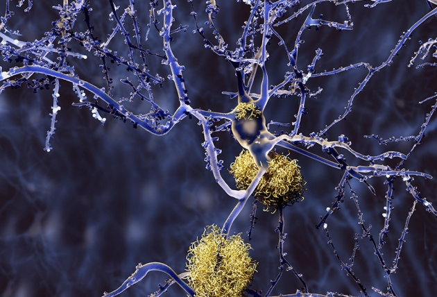 Protein shows promise for effective Alzheimer's treatment
