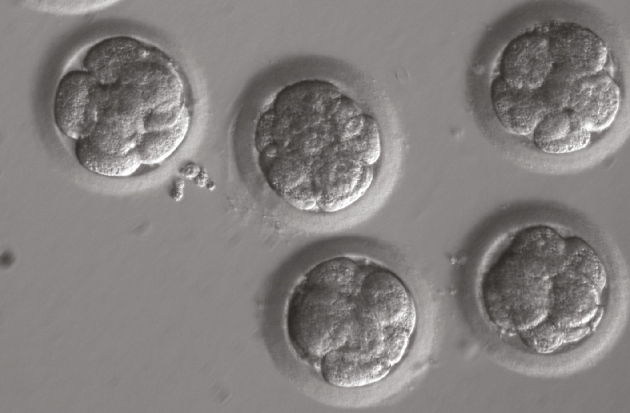 doubts raised about crispr gene editing study in human embryos  h ma et al nature