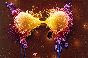 Cancer Genetics - Magazine cover