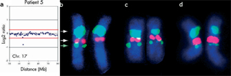 A four-panel figure contains a computer-generated data plot and three photomicrographs of chromosome 17 (with its homologous partner). The chromosomes were subjected to Fish analysis and appear fluorescent blue against a black background. Light blue, pink, and green fluorescent staining mark specific regions along the chromosomes. Absence of staining where it appears at the same site in the chromosome of other individuals suggests a deletion event has occurred.