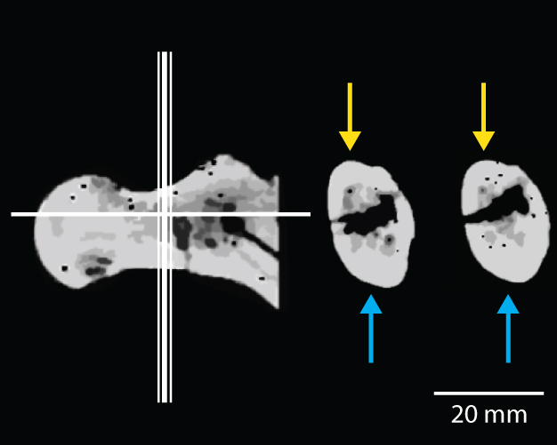 CT-exploraciones del cuello femoral de BAR 1002'00, un ejemplar de Orrorin tugenensis.