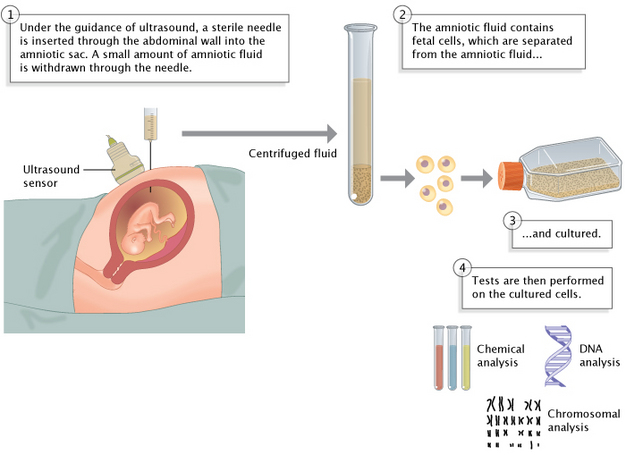 Prenatal Screen Detects Fetal Abnormalities Learn Science At Scitable