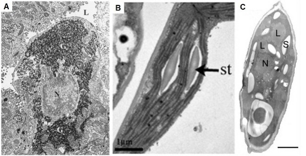 Three panels of electron micrographs (A, B, and C) show different storage molecules in three types of cells: glycogen in an animal cell, starch in a plant cell, and lipids in a single celled organism, an amoeba.