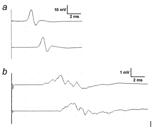 nerve conduction study machine