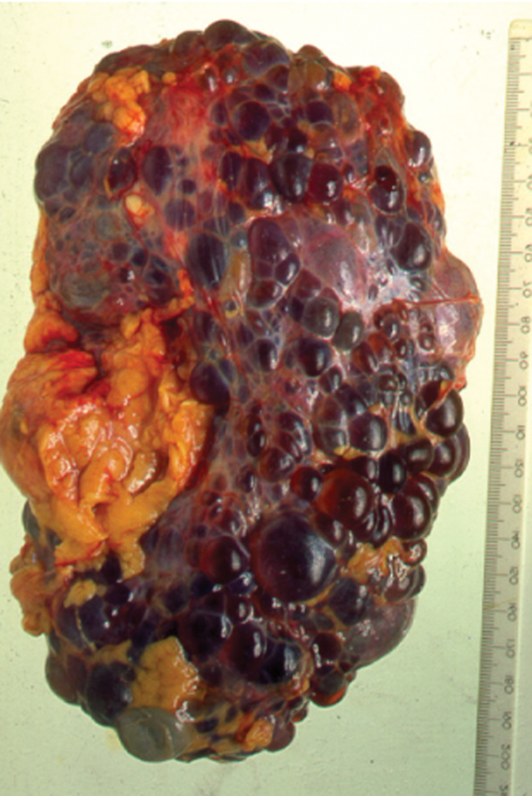polycystic  disease